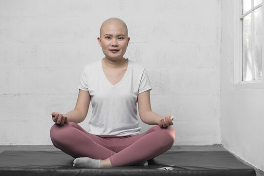 Happy Young adult female cancer patient practicing yoga. Active lifestyle