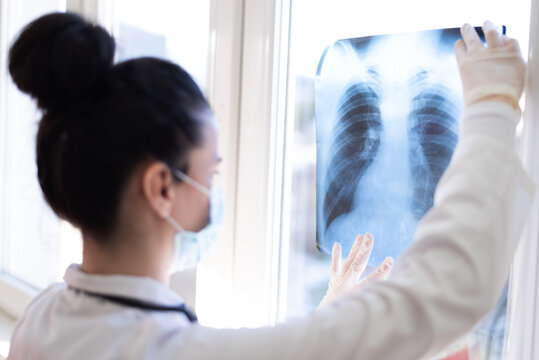 Pulmonologist looking at lung x-ray prescribing treatment to patient, healthcare