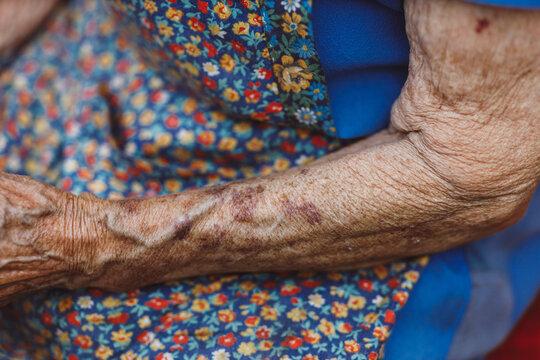 Skinny arms of elder female