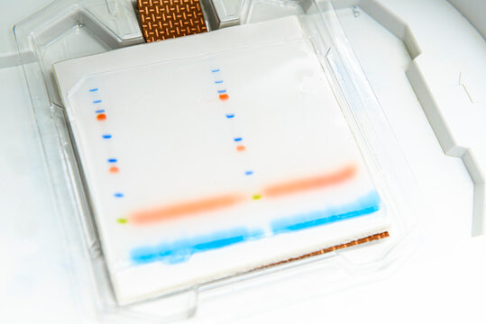 Western blotting, protein blotting: the transfer of proteins that have been separated by gel electrophoresis onto a membrane