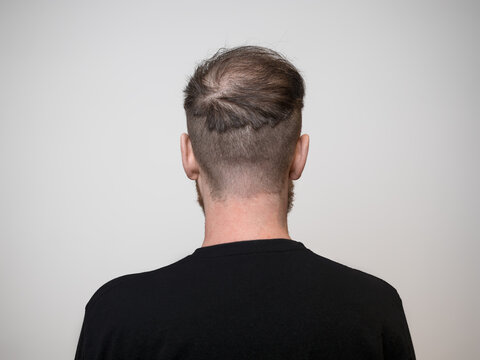 One young caucasian male facing away with the back of his head showing a bald patch. A balding concept that shows clear signs of hair loss in the early stages. White background with room for text.