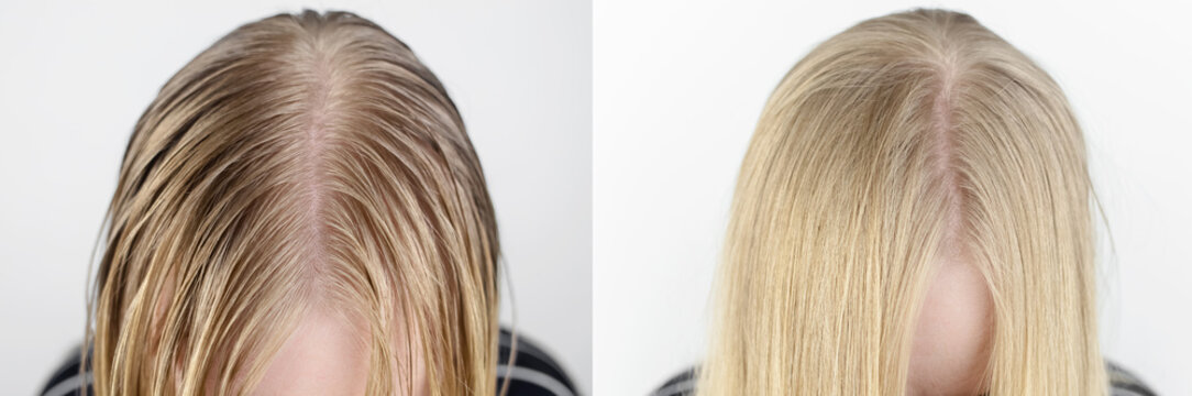 Before and after. The girl looks in front of the mirror at her oily hair. Problematic scalp and increased secretion of the sebaceous glands. Hair care. Oily hair care and treatment concept