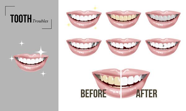 歯のトラブルセット