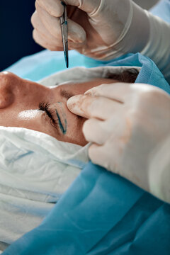 Close up of the face of a patient undergoing blepharoplasty. The surgeon cuts the eyelid and performs manipulations using medical instruments