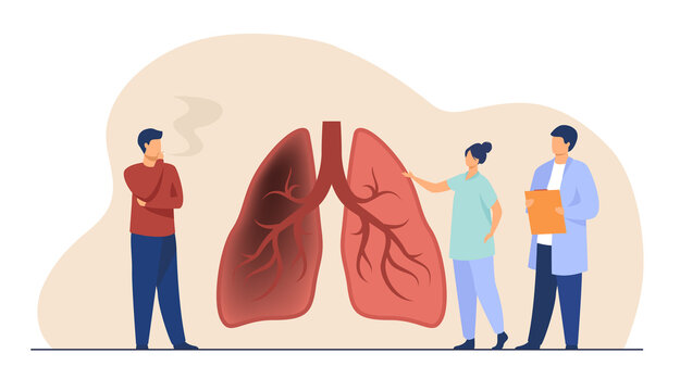 Tiny doctor showing lungs of smoker. Organ, physician, health flat vector illustration. Healthcare and obsessive habit concept for banner, website design or landing web page