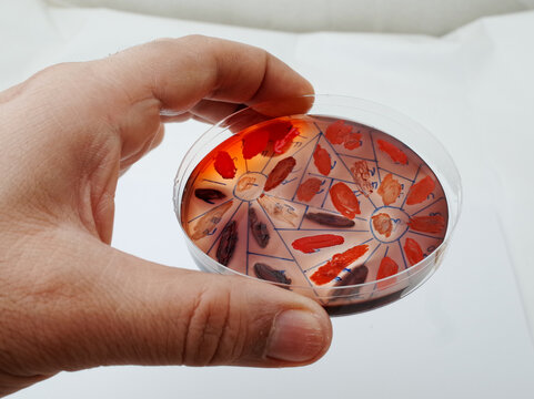 grwoth of different bacterial species on congo red agar plate to detect the ability of  the bacteria to produce biofilm