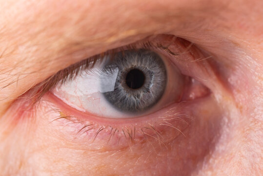 human eye with upper and lower eyelids