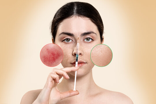 Portrait of a woman holding a syringe to her face, with zoomed circles on her cheeks showing blood vessels and healthy skin.Before and after treatment of vascular diseases.Rosacea treatment concept