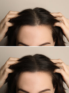 Woman suffering from baldness on beige background, closeup. Collage with photos before and after treatment