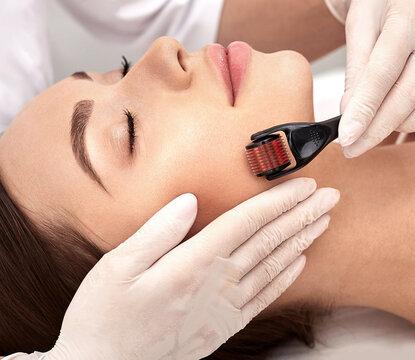 Micro derma facial roller. Brunette woman having derma roller treatment for improving surface skin
