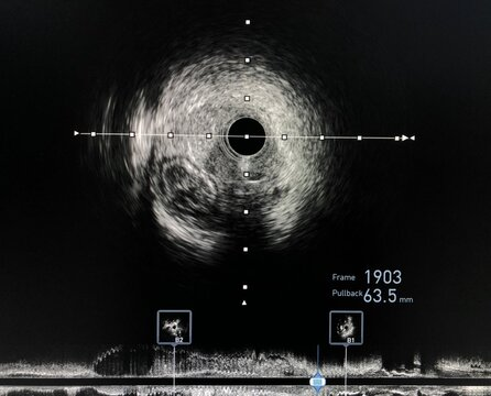Intravascular ultrasound imaging (IVUS) shown guide wire in a false lumen during percutaneous coronary intervention (PCI) of chronic total occlusion (CTO) coronary artery.