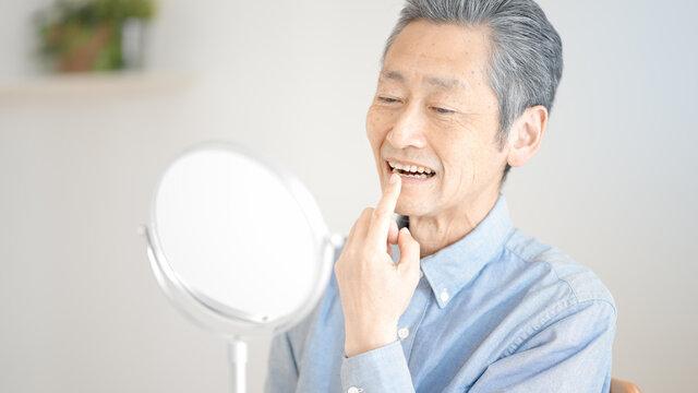 歯の状態を確認するシニア男性