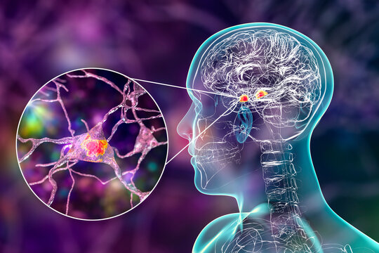 Amygdala in the brain, and closeup view of amygdala neurons, 3D illustration