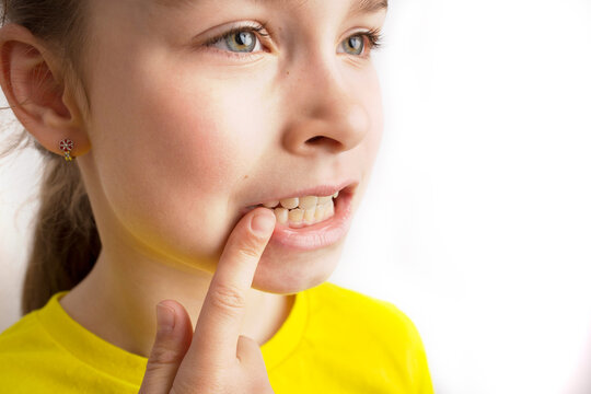Little girl stands on a white background with a beautiful smile, children crooked teeth, pediatric dentistry. Crooked teeth close-up. Correction of malocclusion is required.