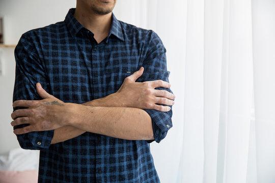 man hugs himself blue shirt hands vitiligo