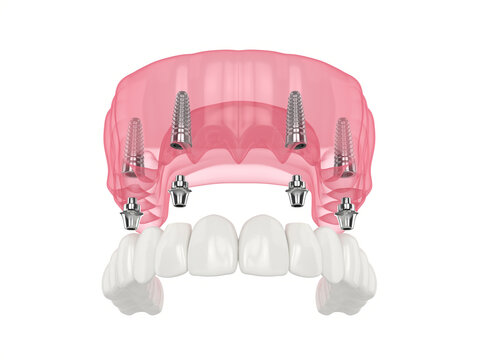 Mandibular prosthesis all on 4 system supported by implants