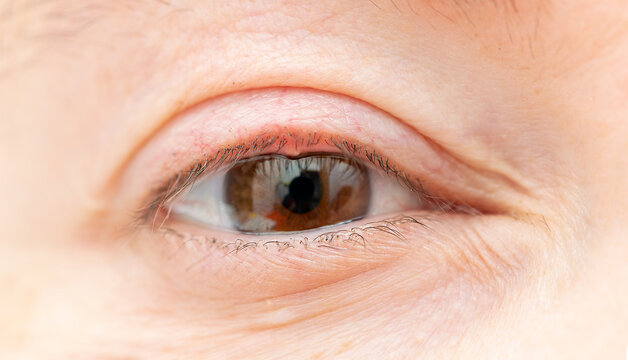 Close up of a woman's eye with a bacterial infection of an oil gland in the lower eyelid.