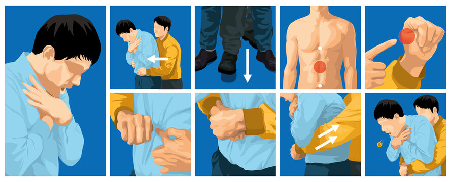 Heimlich maneuver vector illustration. first aid to choking for adults.
