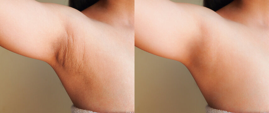 Image before and after skincare cosmetology armpits epilation treatment concept.Problem underarm chicken skin,Fox Fordyce,Black armpit in woman.