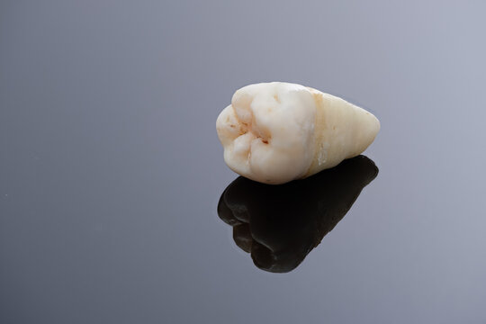 Pulled wisdom tooth on black