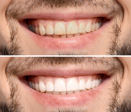 Collage with photos of man before and after teeth whitening, closeup