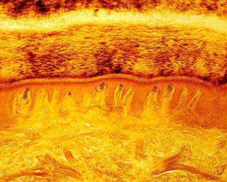 Finger pad skin. Meissner corpuscles