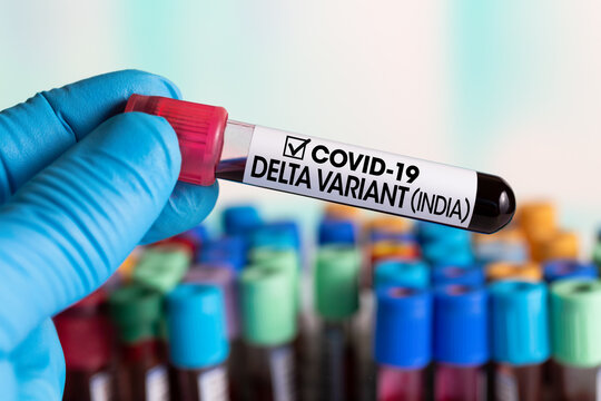 Doctor with a blood sample with a new Indian variant of Coronavirus strain called DELTA. Laboratory Technician in the lab holding a tube of blood test identified with the label Covid-19 DELTA Variant
