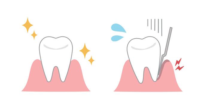 健康な歯茎と歯周病の歯茎 医療用イラスト