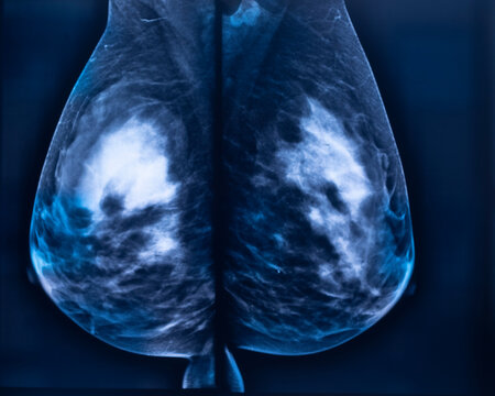 Breast mamogram xray test