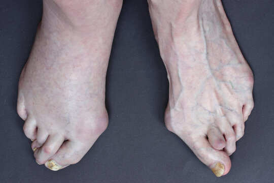 Three problems in a 74-year-old man: deformity of human foot - hallux valgus, diagnosed thrombosis on right leg and fungal nail infections