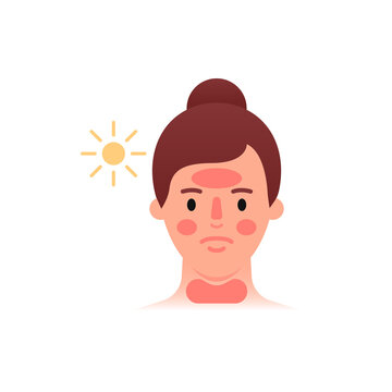 Sunburn icon. Woman with red face. Flat style.