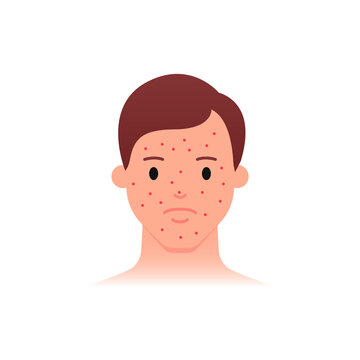 Acne problem icon, male character. Flat style.