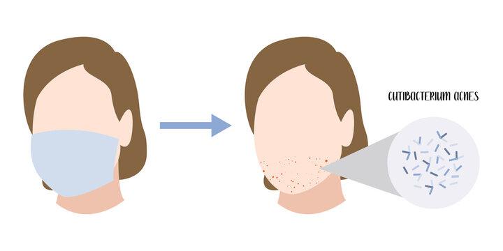 Cutibacterium acnes, Propionibacterium. Gram-positive bacteria. Acne, inflammatory skin disease, skin rashes and pimples on face, allergy. Dermatology. Vector flat cartoon illustration