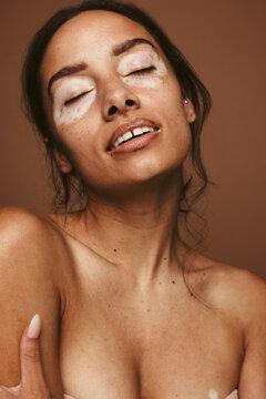 Confident woman with vitiligo