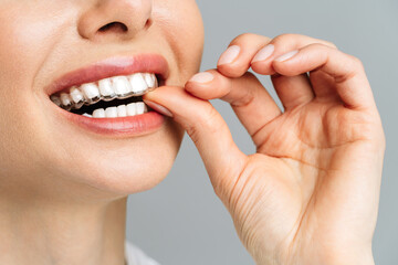 Fototapeta A young woman does a home teeth whitening procedure. Whitening tray with gel obraz