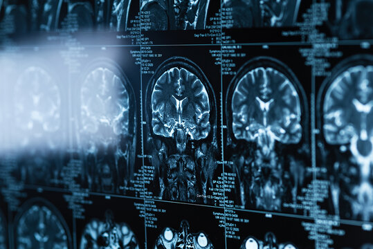 series of MRI images of head and brain, magnetic resonance imaging scan, world cancer day