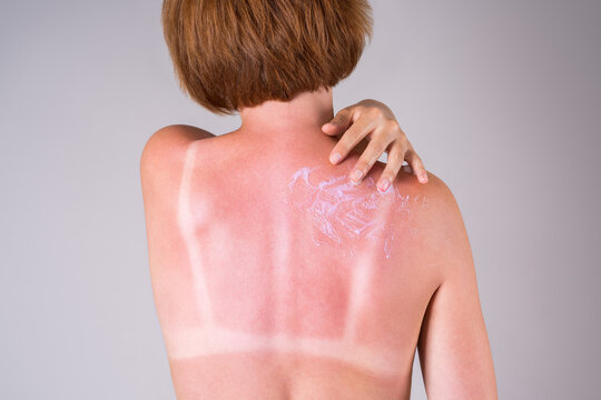 A tanned woman applies sunscreen to her back, sunburn marks on the body