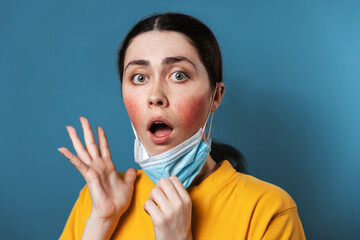 Obraz Maskne. Portrait of a young amazed woman shows irritation on her cheeks from wearing a protective mask. Blue background. The concept of rosacea and allergies - fototapety do salonu