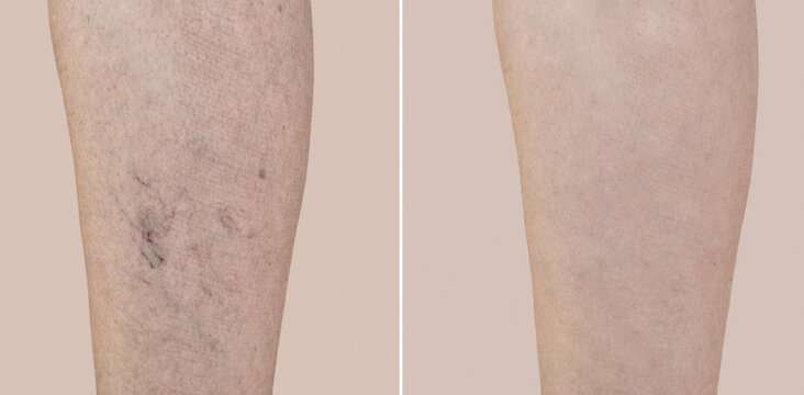 Part of a leg of a middle-aged woman with varicose veins and capillaries before and after medical treatment. Close-up.