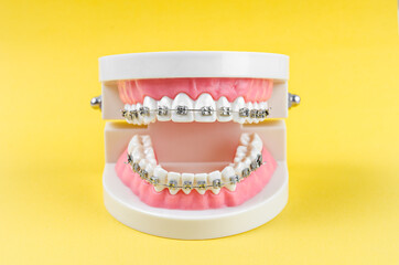 Fototapeta tooth model with metal wire dental braces and equipment. obraz