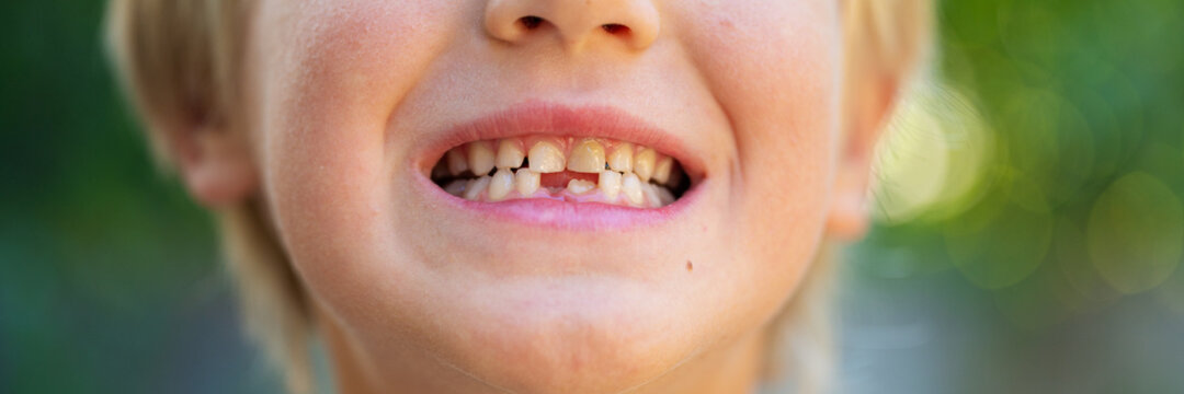 Wide view image of a toddler boys smile with missing milk teeth